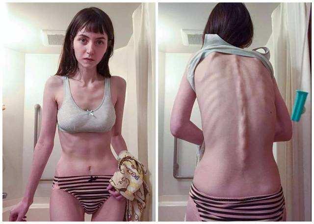 """妙龄女子24岁仅有42斤,不吃饭只喝水,如今成有名""""骷颅美女"""""""